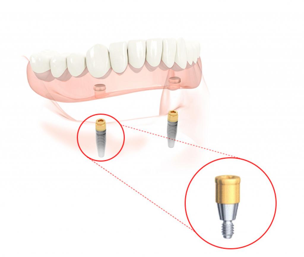 富沢西EBデンタルクリニックのインプラント義歯