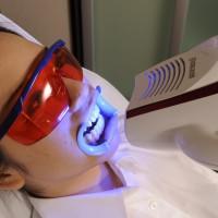 富沢の歯科、ホワイトニング