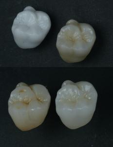 歯医者 ジルコニア